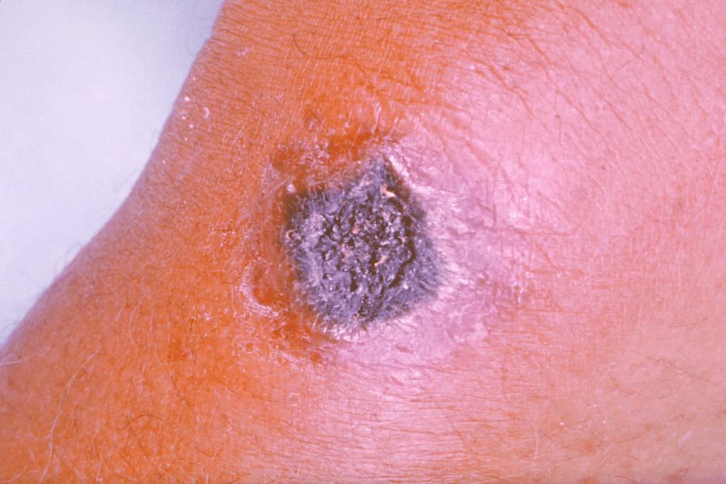 Anthraxová záhada. Jako u všech událostí spojených s 11. zářím 2001, partička vyvolených věděla s předstihem i o anthraxovém útoku, a tak začali včas užívat patřičné medikamenty. Aby nedopadli jako člověk na obrázku. Ilustrační foto Wikimedia Commons